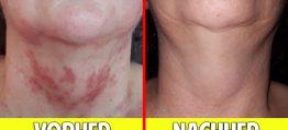 Erstaunliche Heilung der Haut durch Aktivierung des Stoffwechsels – Wie funktioniert unsere Haut?